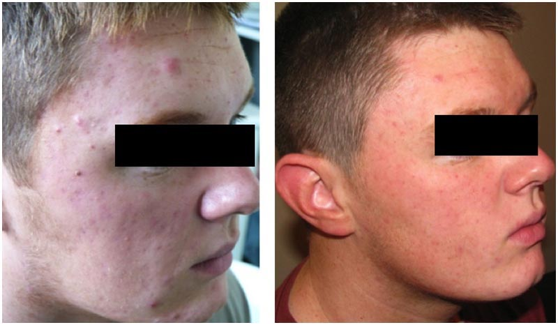 Acne treatment result man right face
