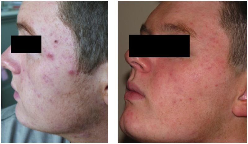 Acne treatment result man left face