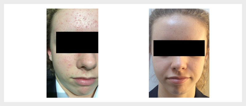 Dermalux LED Acne treatment