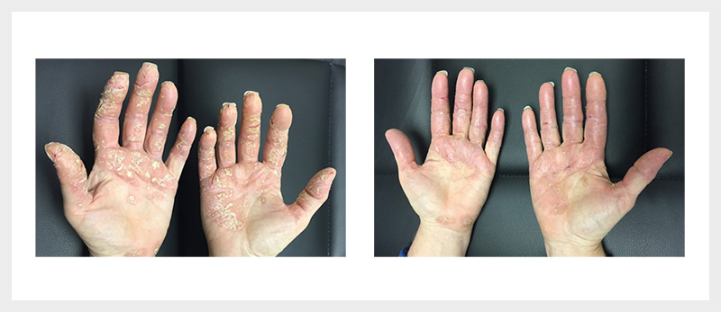 Dermalux LED Dermatitis treatment