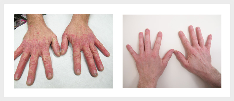 Dermalux LED Psoriasis treatment