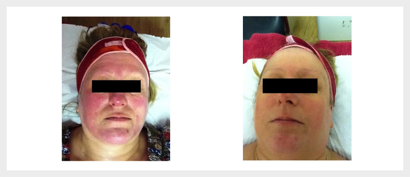 Dermalux LED Rosacea treatment